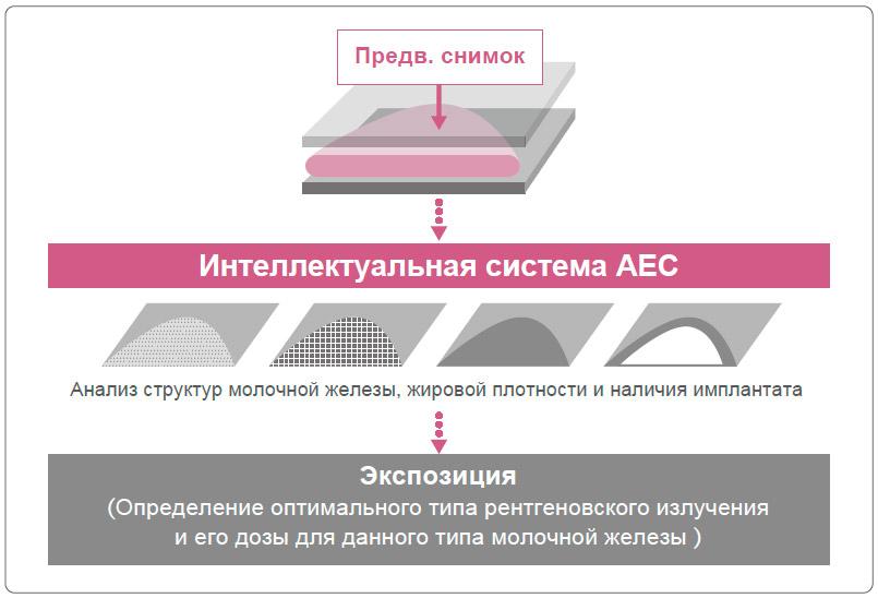 Как работает интеллектуальная система AEC
