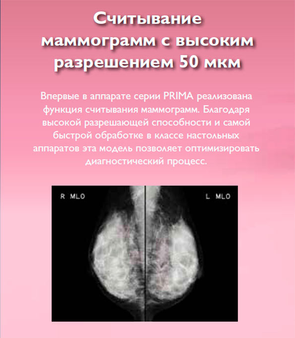 Считывание маммограмм с высоким разрешением 50 мкм. Впервые в аппарате серии PRIMA реализована функция считывания маммограмм. Благодаря высокой разрешающей способности и самой быстрой обработке в классе настольных аппаратов эта модель позволяет оптимизировать диагностический процесс.